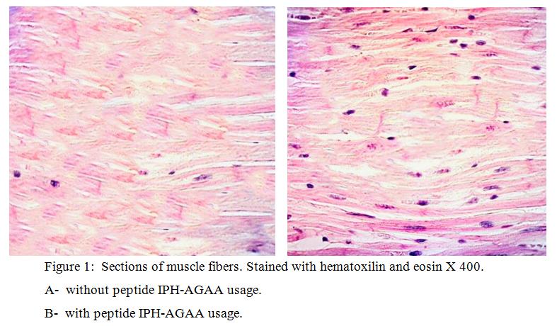 14 muscle fibers 02